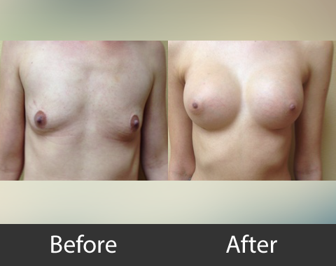 Breast Augmentation 01