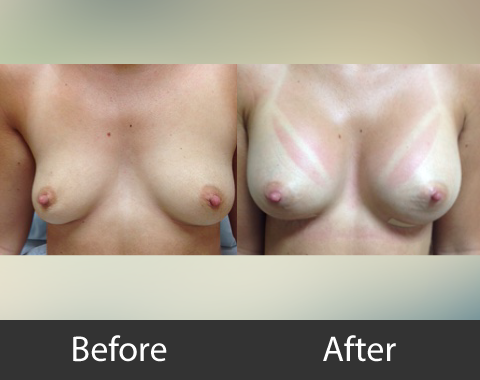 Breast Augmentation 03