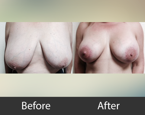 Breast Lift Augmentation 01