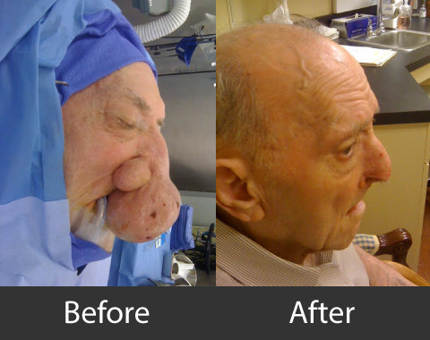 BeforeAfter_Reconstruction_02