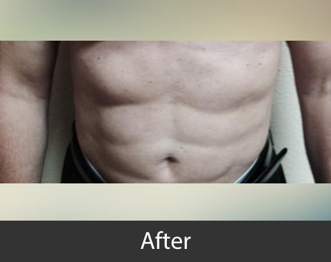Liposuction_Male_AfterOnly01